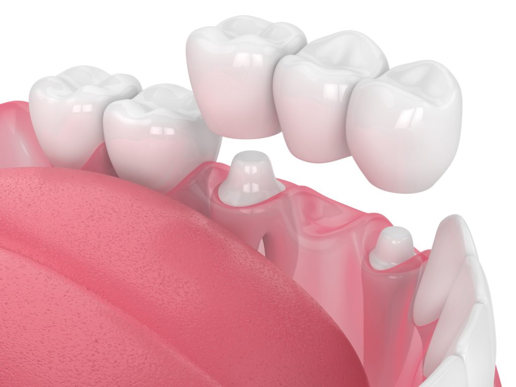 Illustration of a dental bridge being placed into a bottom row of teeth